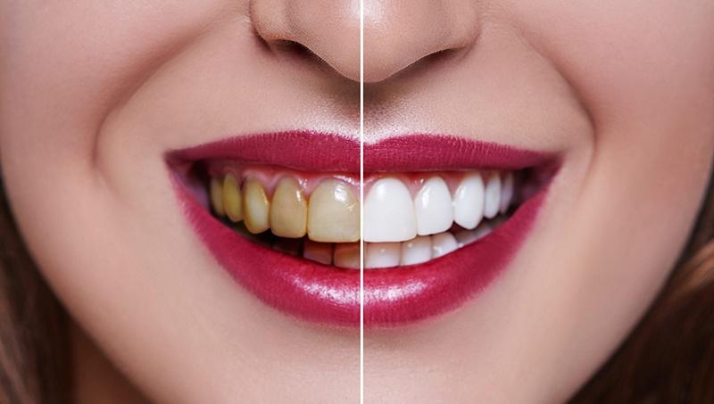 What happens to your teeth under veneers?